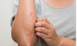 Cần chăm sóc da thật kỹ để điều trị viêm da cơ địa mạn tính