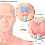 Phương pháp i-ốt phóng xạ giúp điều trị cường giáp