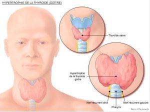 Điều trị cường giáp nhờ phương pháp i-ốt phóng xạ