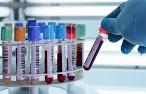 Chẩn đoán sớm bệnh ung thư tuyến tụy thông qua xét nghiệm máu