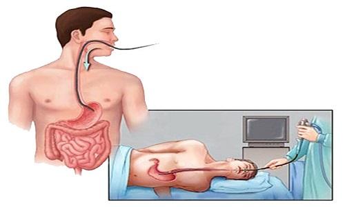 Nội soi giúp chẩn đoán ung thư dạ dày chính xác