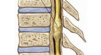 Phương pháp phẫu thuật điều trị u tủy sống