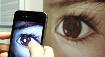 Sử dụng smartphone để phát hiện ung thư mắt