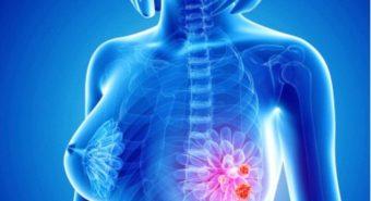 Thống kê 5 loại bệnh ung thư phụ nữ dễ mắc phải