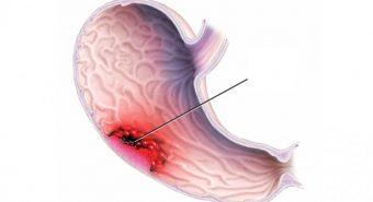 Thống kê các nguyên nhân mắc ung thư dạ dày