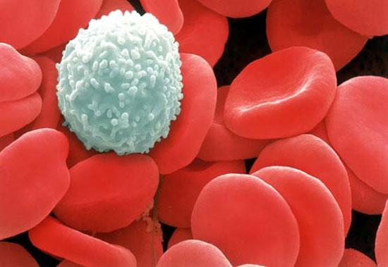 Tế bào ung thư máu ở người