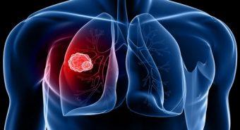 Tìm hiểu các phương pháp xét nghiệm chẩn đoán ung thư phổi