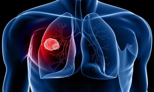 Thực hiện các xét nghiệm chẩn đoán ung thư phổi ở giai đoạn đầu giúp giảm tỷ lệ tử vong