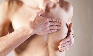 Núm vú sưng là một triệu chứng ban đầu của bệnh ung thư tinh hoàn