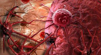 Tin vui cho người mắc bệnh ung thư thận