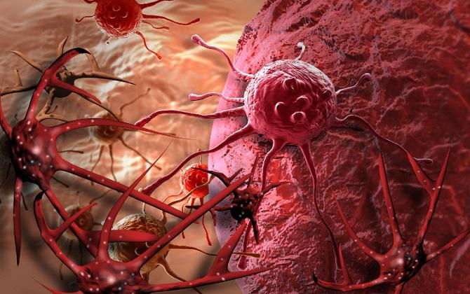 Loại bỏ cục máu đông nhằm điều trị bệnh ung thư thận