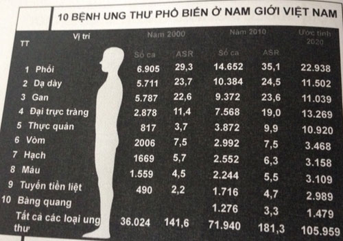 Các bệnh ung thư nam giới Việt Nam dễ mắc phải: ung thư phổi, dạ dày, gan,…