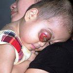 Ung thư mắt ở trẻ em có điều trị khỏi được không?