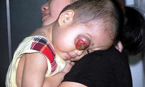 Ung thư mắt ở trẻ em nếu phát hiện muộn sẽ rất nguy hiểm