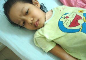 ung thư máu hành hạ bé Phương từng ngày
