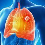 Ung thư phổi do ăn nhiều bột đường