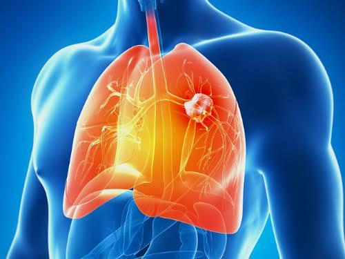 Nguyên nhân mắc ung thư phổi do ăn nhiều chất bột đường