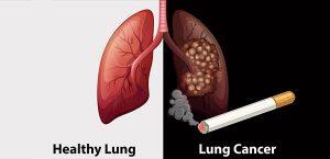 Nguyên nhân chính gây ung thư phổi chính là thuốc lá