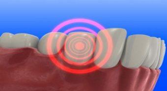 """Vệ sinh răng miệng kém là """"thủ phạm"""" gây bệnh ung thư lưỡi"""
