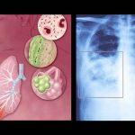 Vi khuẩn Legionella gây viêm phổi cấp bùng phát tại Mỹ