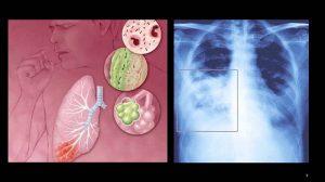 Viêm phổi cấp là một dạng viêm phổi nặng gây ra bởi vi khuẩn Legionella