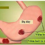 Viêm loét dạ dày là nguyên nhân chính gây ung thư dạ dày