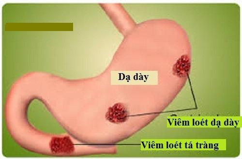 Viêm loét dạ dày là nguyên nhân gây ung thư dạ dày