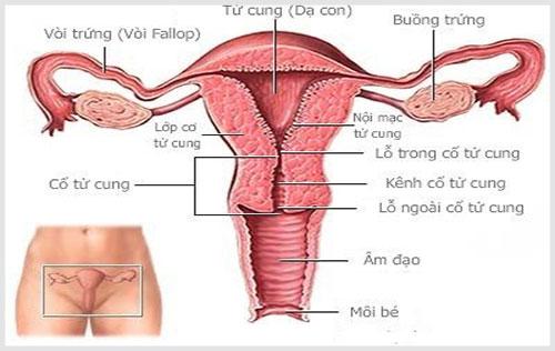 Viêm lộ tuyến cổ tử cung cản trở phụ nữ được làm mẹ