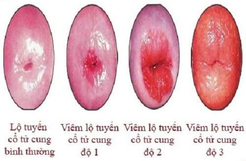 Viêm lộ tuyến cổ tử cung độ 1, 2, 3 điều trị như thế nào?