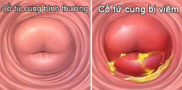 Hình ảnh cổ tử cung bị viêm