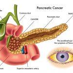 Viêm tụy mãn tính có biến chứng thành ung thư tụy?