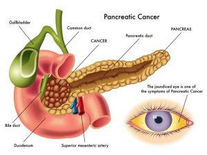 Viêm tụy mạn tính có biến chứng thành ung thư tụy?