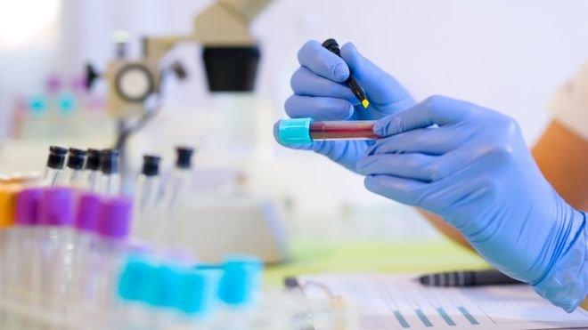 Chẩn đoán ung thư sớm bằng xét nghiệm máu qua chương trình máy tính