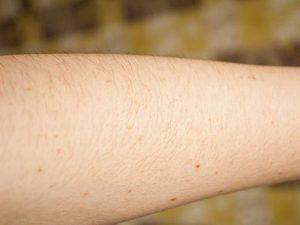 nốt ruồi trên cánh tay tỉ lệ với nguy cơ ung thư da