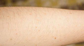 Báo động nốt ruồi trên cánh tay tỷ lệ thuận với nguy cơ ung thư da