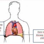 Tư thế nằm cho bệnh nhân tràn dịch màng phổi
