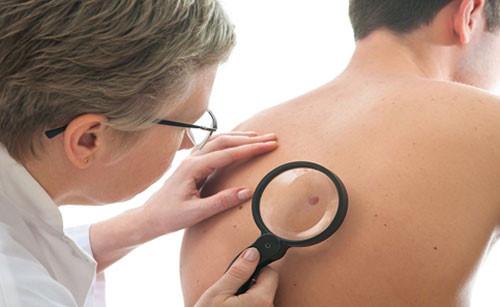 có nhiều nguyên nhân gây ra ung thư da