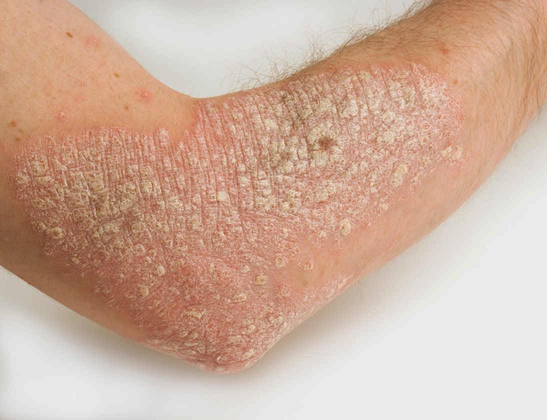 Nhiễm trùng, nhiễm khuẩn, nấm có thể làm bệnh vẩy nến nặng hơn