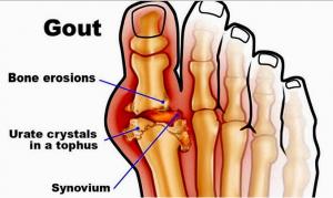 Hợp chất urat lắng đọng ở dưới da tạo nên các u, cục dấu hiệu của bệnh gout
