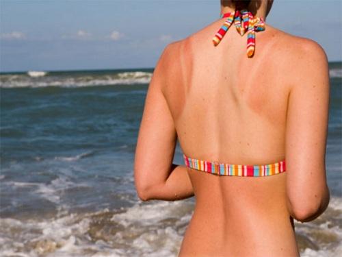 Ánh nắng mặt trời là nguyên nhân dẫn đến ung thư da cực kỳ nguy hiểm