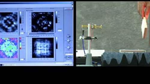 Chiếc máy ảnh giúp phát hiện sớm ung thư da