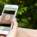 Nhận biết ung thư da qua ứng dụng điện thoại