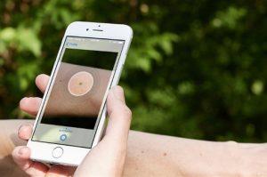 Ứng dụng SkinVision trên điện thoại sẽ giúp nhận biết ung thư da