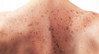 Ung thư da vì muốn có làn da rám nắng