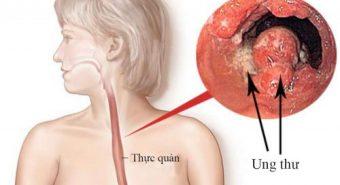 Bệnh trào ngược dạ dày - những điều cần lưu tâm