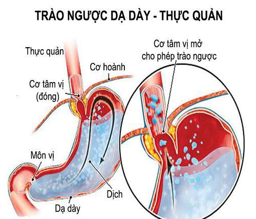 Trào ngược dạ dày thực quản có nguy cơ biến chứng ung thư thực quản
