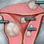 Có nên phẫu thuật u xơ tử cung không?
