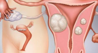 Đau bụng kéo dài - dấu hiệu của bệnh u xơ tử cung