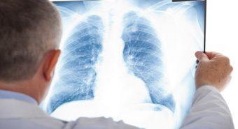 Sự nguy hiểm của căn bệnh ung thư phổi