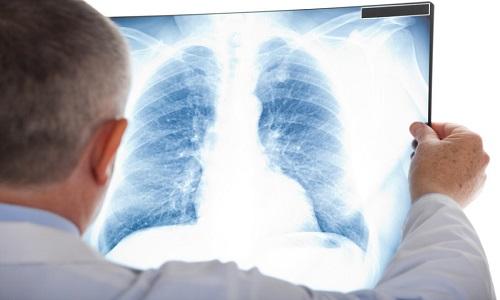 Phát hiện sớm ung thư phổi tăng cơ hội sống cho người bệnh